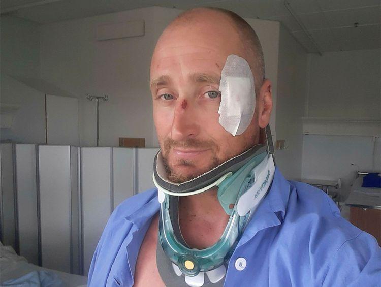 Magnus Uhr på sjukhuset efter olyckan. Nackkrage och ett stort plåster över hålet i tinningen.